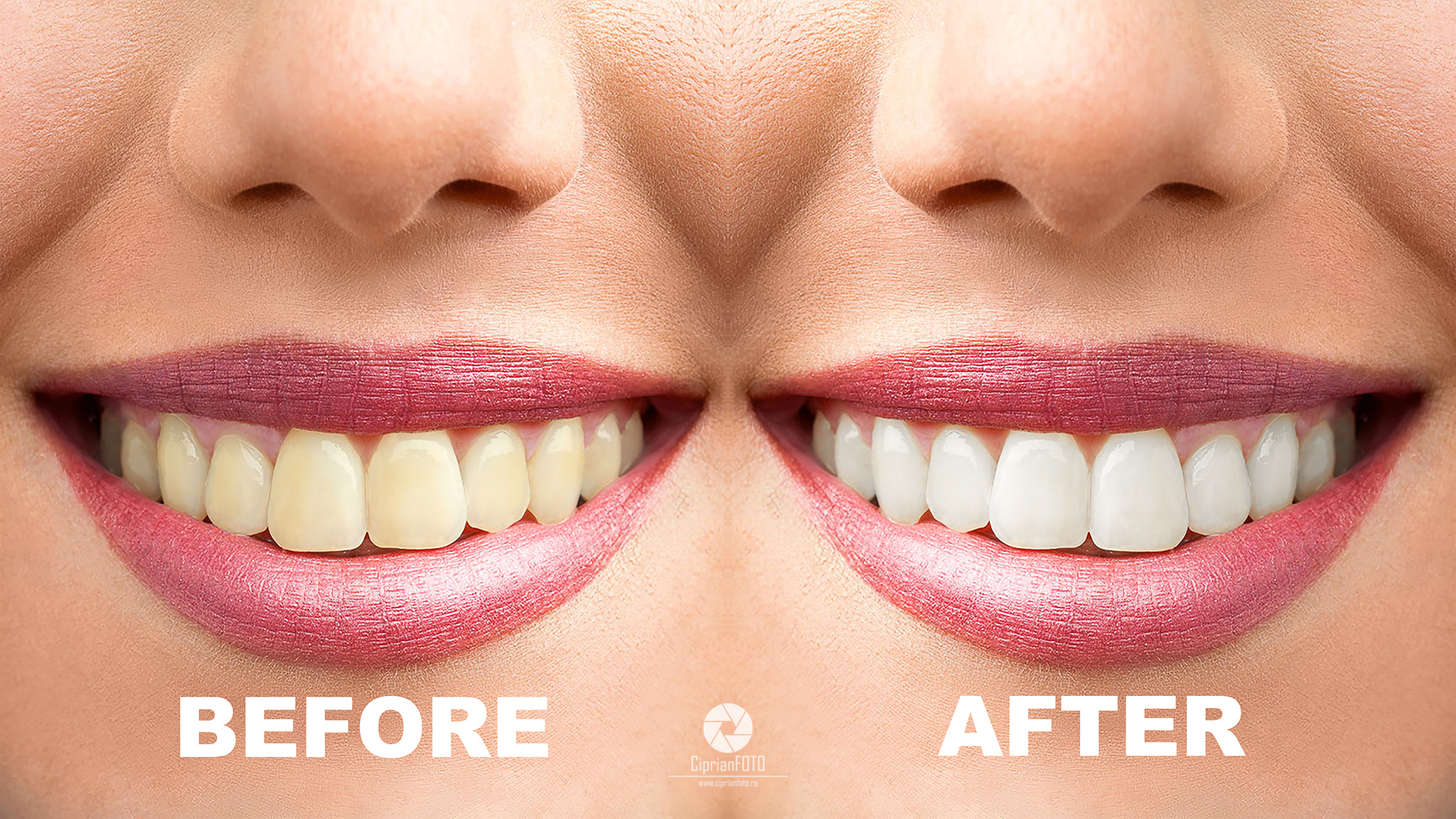 whiten teeth in photoshop, photoshop tutorials, CiprianFOTO